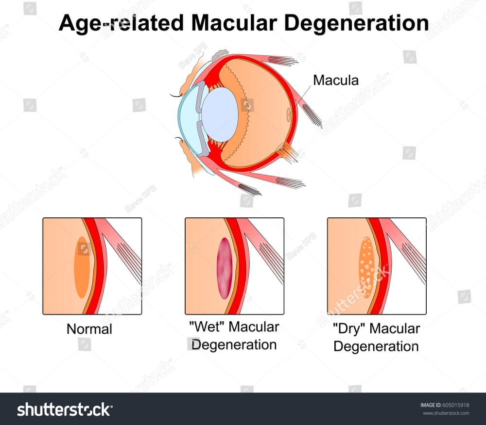 medium resolution of age related macular degeneration eye vision disorder diagram of the eye
