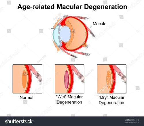 small resolution of age related macular degeneration eye vision disorder diagram of the eye