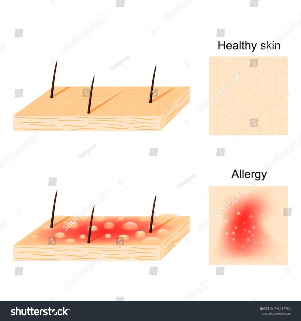 medium resolution of allergy hives urticaria common allergic symptom stock vectorhives urticaria are a common allergic symptom