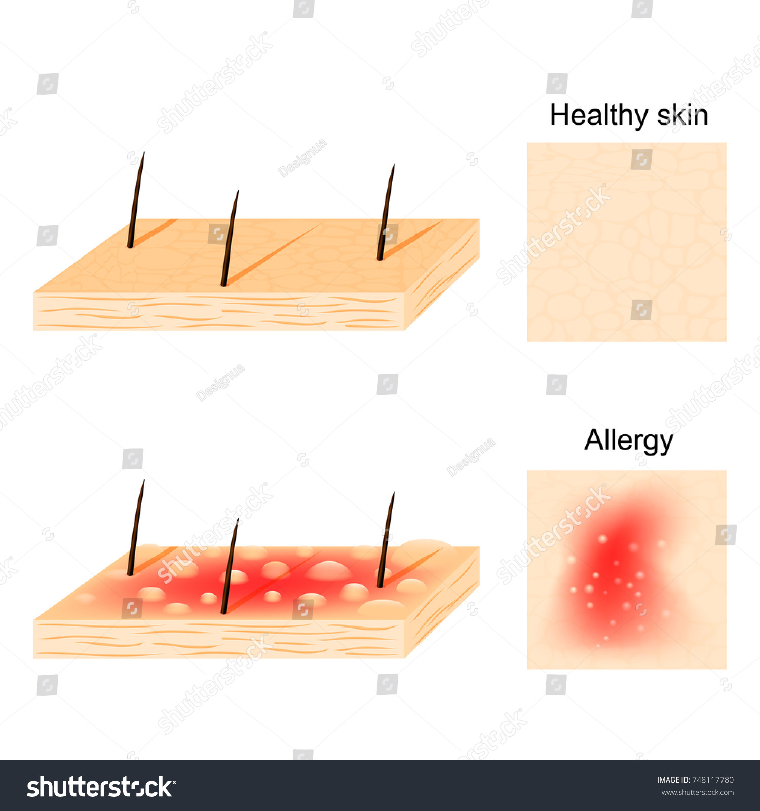 hight resolution of allergy hives urticaria common allergic symptom stock vectorhives urticaria are a common allergic symptom