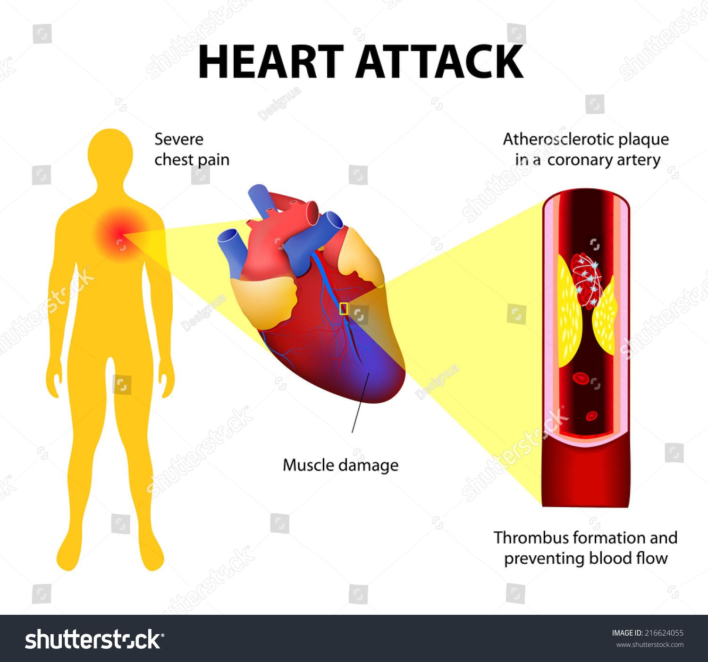 healthy heart diagram visual studio uml class anatomy attack myocardial infarction stock