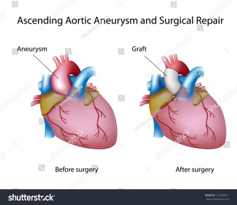 Ascending Aortic Aneurysm Open Surgery Stock Vector