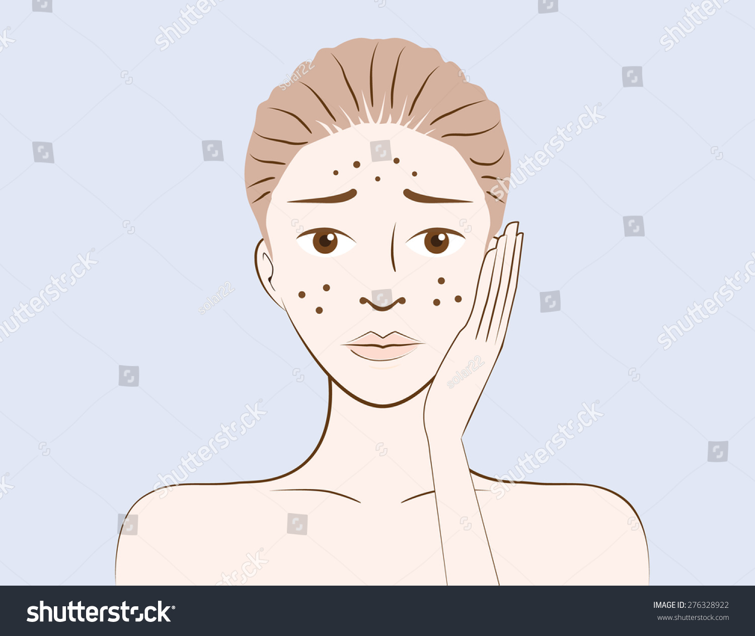 hight resolution of beauty women have problem acne skin on face in cartoon version