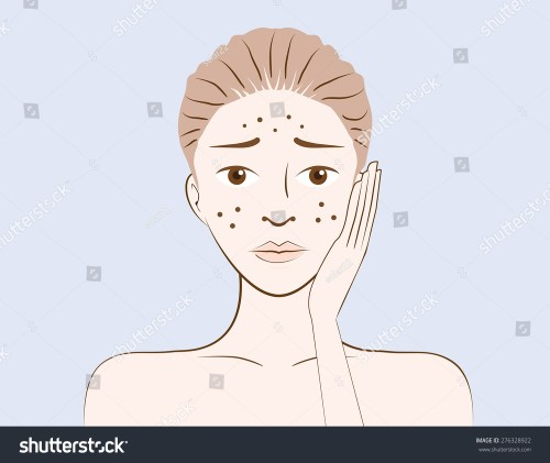 small resolution of beauty women have problem acne skin on face in cartoon version