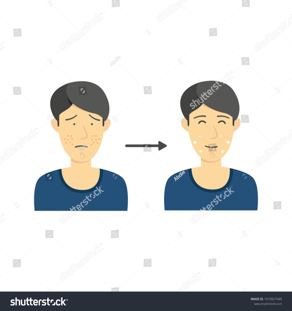 medium resolution of black hair male from acne face to clean face without acne diagram infographic illustration