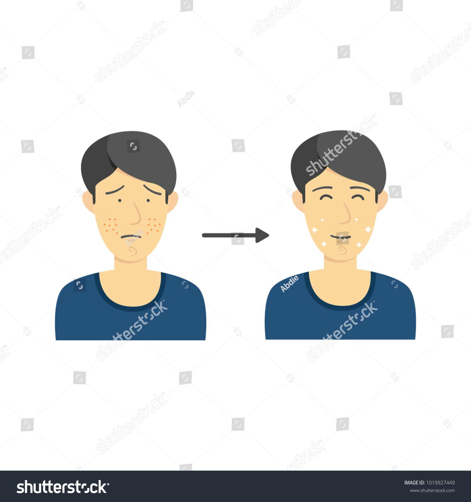 hight resolution of black hair male from acne face to clean face without acne diagram infographic illustration