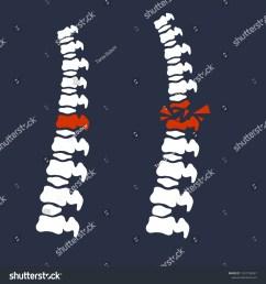 broken back diagram wiring diagram tutorial bones spine problem posture broken back stock vector royalty [ 1500 x 1600 Pixel ]