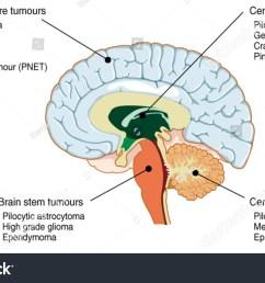 brain tumours of the cerebral hemisphere brain stem cerebrum and brain centre  [ 1500 x 952 Pixel ]