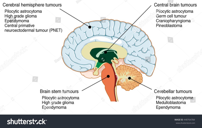 hight resolution of brain tumours of the cerebral hemisphere brain stem cerebrum and brain centre