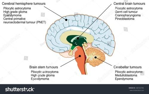 small resolution of brain tumours of the cerebral hemisphere brain stem cerebrum and brain centre