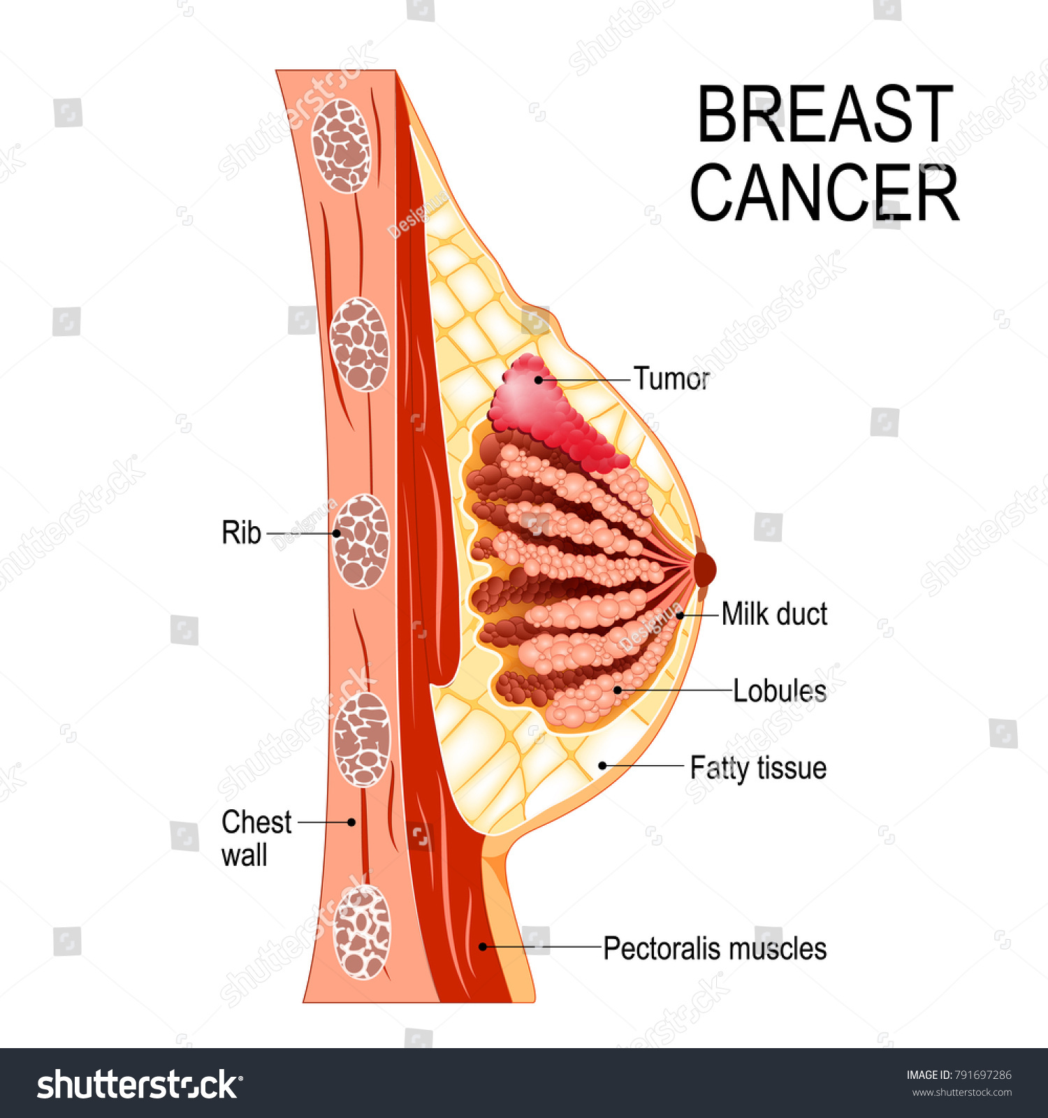 hight resolution of breast cancer cross section of the mammary gland with tumor human anatomy