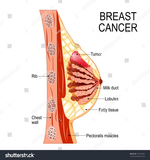 small resolution of breast cancer cross section of the mammary gland with tumor human anatomy