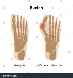 bunion healthy foot and deformed and inflamed foot from above view vector illustration [ 1500 x 1600 Pixel ]