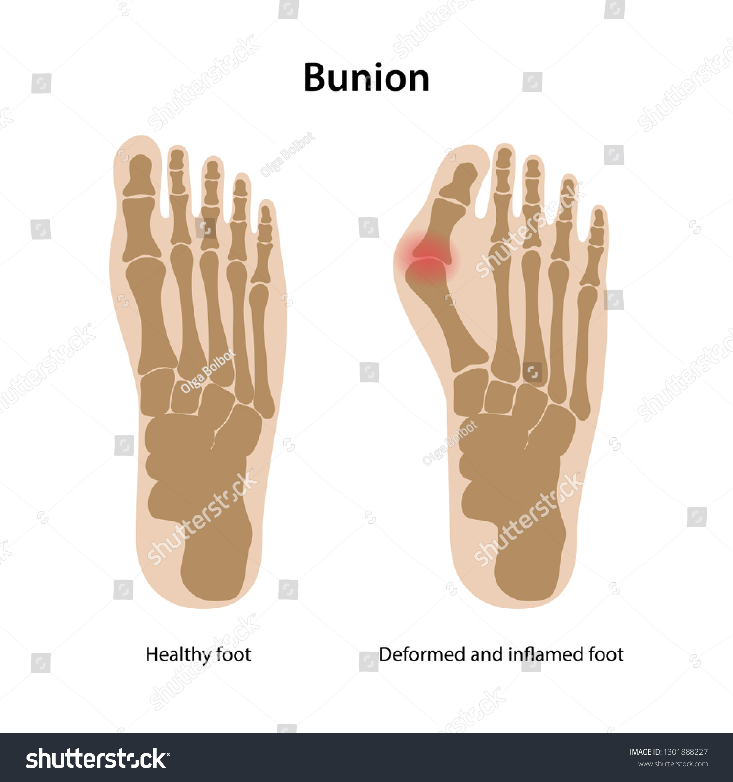hight resolution of bunion healthy foot and deformed and inflamed foot from above view vector illustration