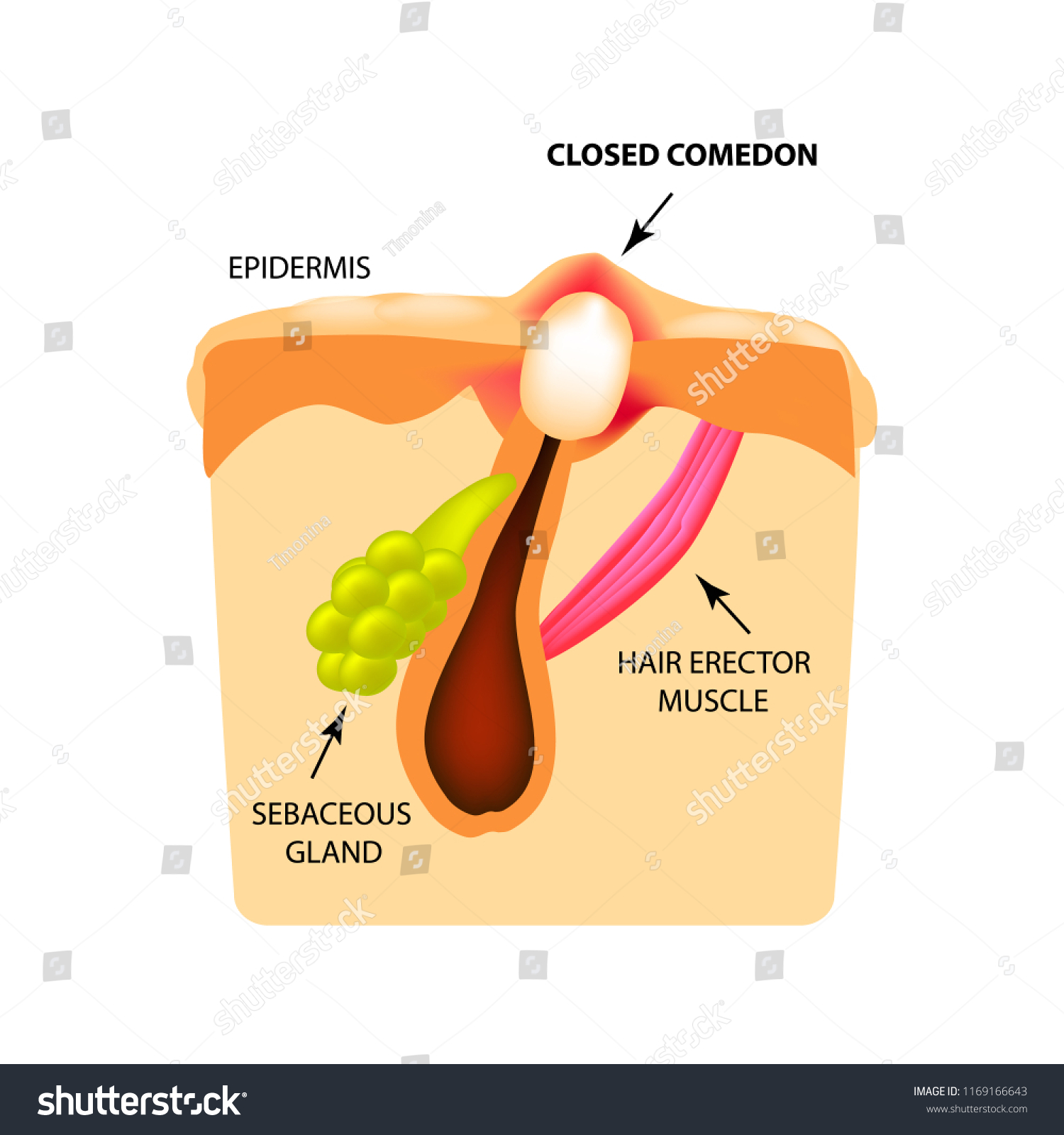 hight resolution of closed comedones white heads acne the structure of the skin infographics vector