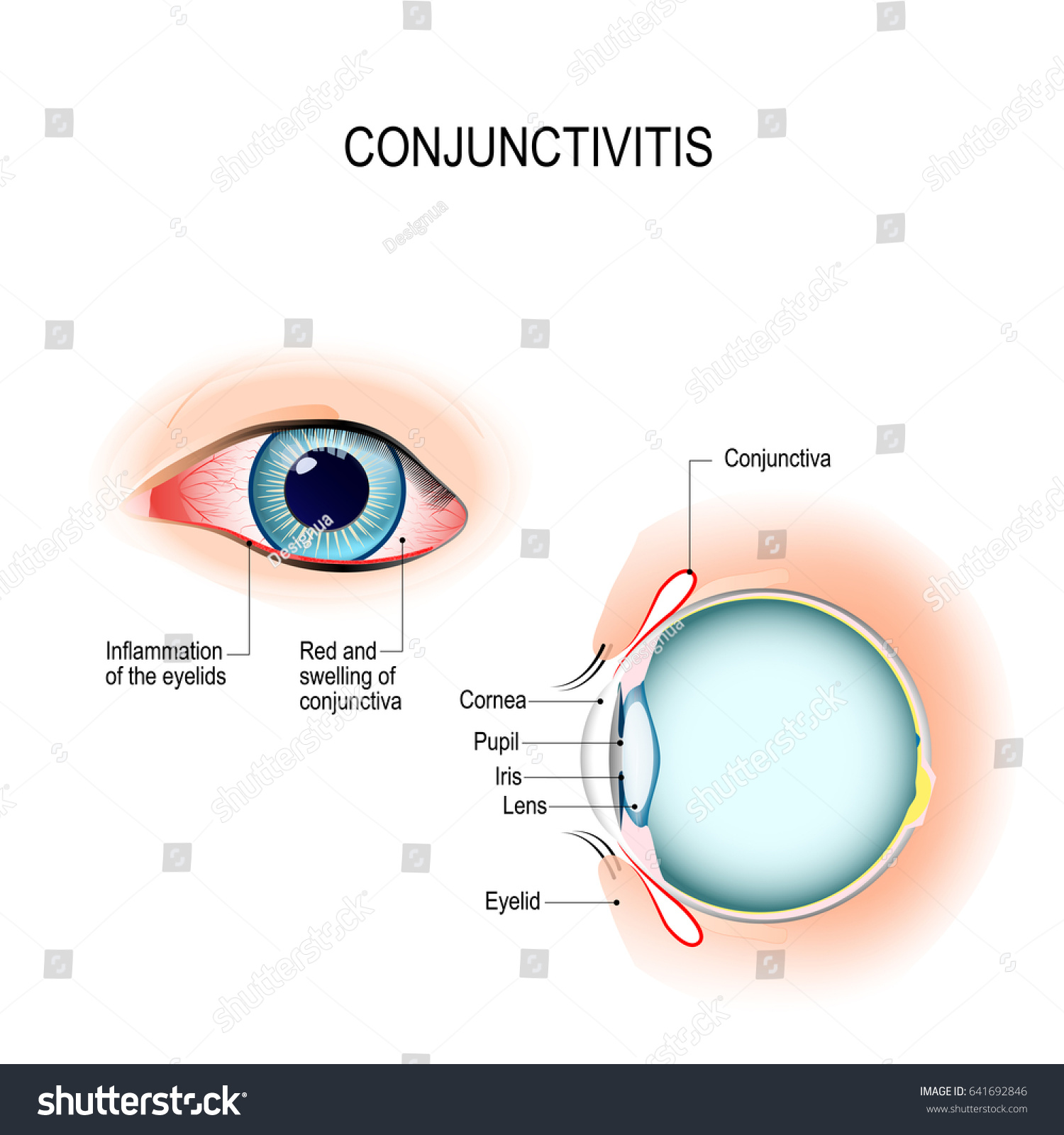 conjunctiva human eye anatomy diagram 2005 chevy impala parts conjunctivitis pink with inflammation external stock