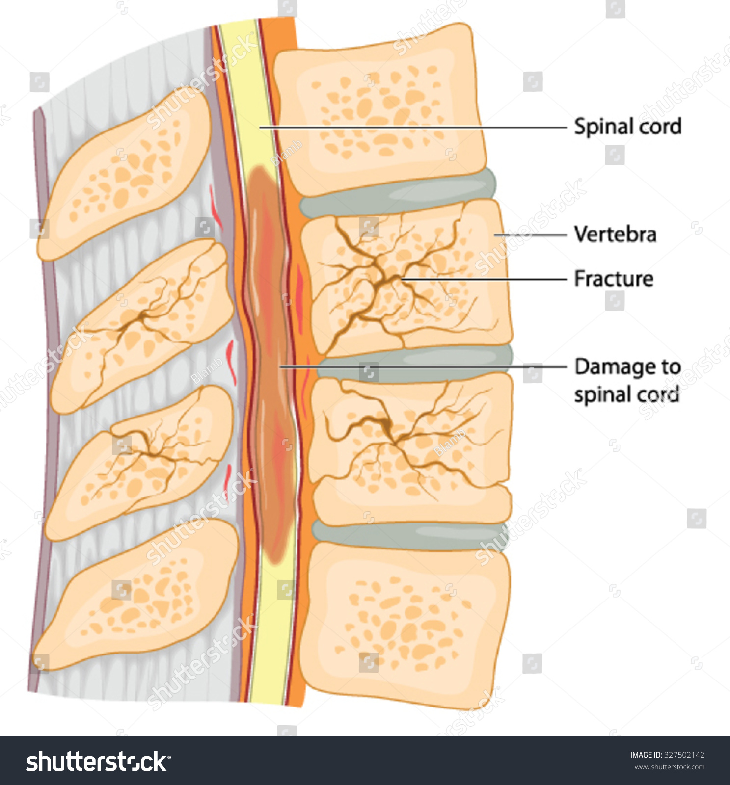 hight resolution of cross section through the spinal column showing fractured vertebrae and damage to the spinal cord