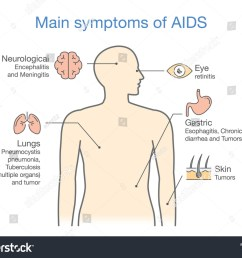 diagram of main symptoms of aids illustration about medical  [ 1500 x 1188 Pixel ]