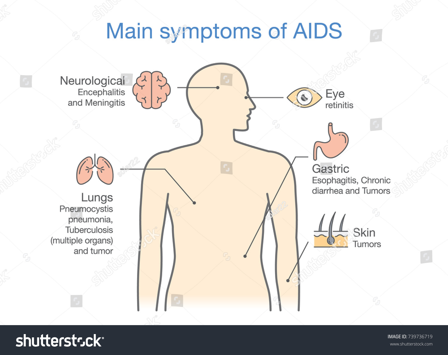 hight resolution of diagram of main symptoms of aids illustration about medical