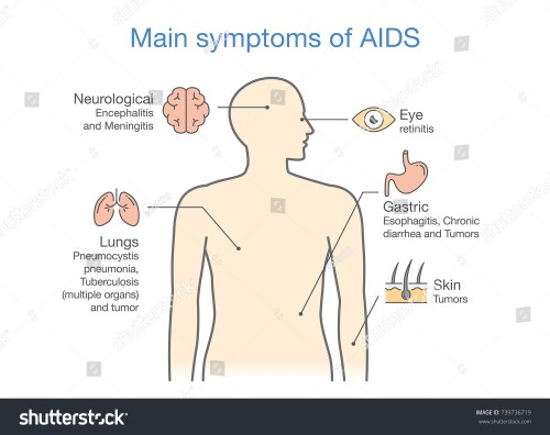 small resolution of diagram of main symptoms of aids illustration about medical