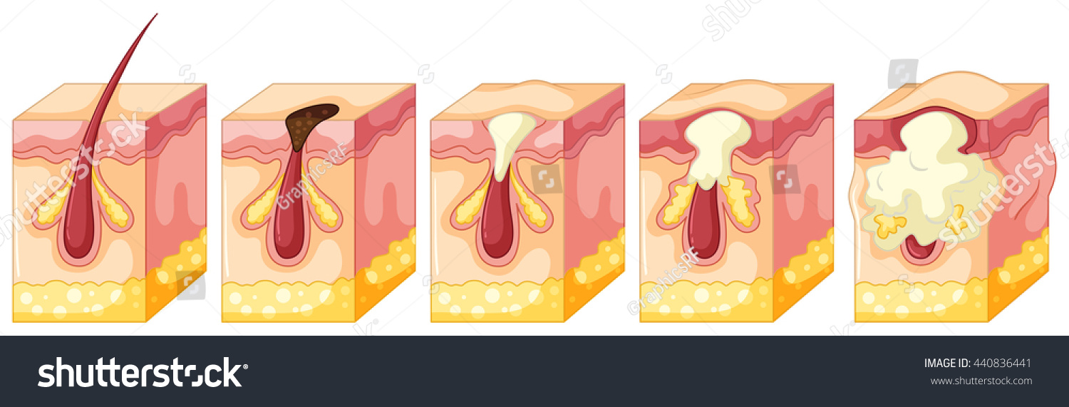 hight resolution of diagram of pimple on human skin illustration