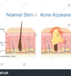 difference of normal skin layer and skin layer with acne illustration about dermatology diagram  [ 1500 x 1138 Pixel ]