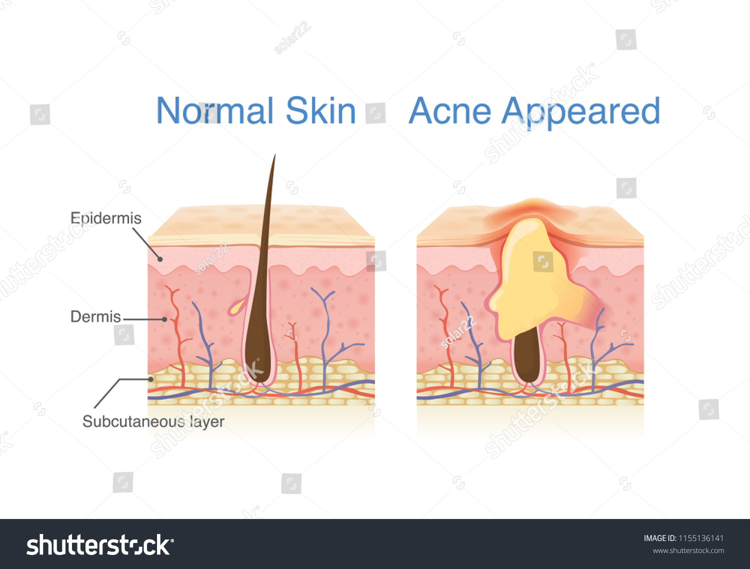 hight resolution of difference of normal skin layer and skin layer with acne illustration about dermatology diagram