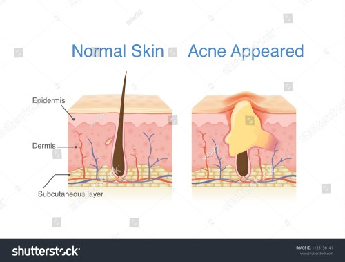 small resolution of difference of normal skin layer and skin layer with acne illustration about dermatology diagram