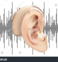 digital hearing aid behind the ear on background of sound wave diagram treatment and [ 1500 x 1153 Pixel ]