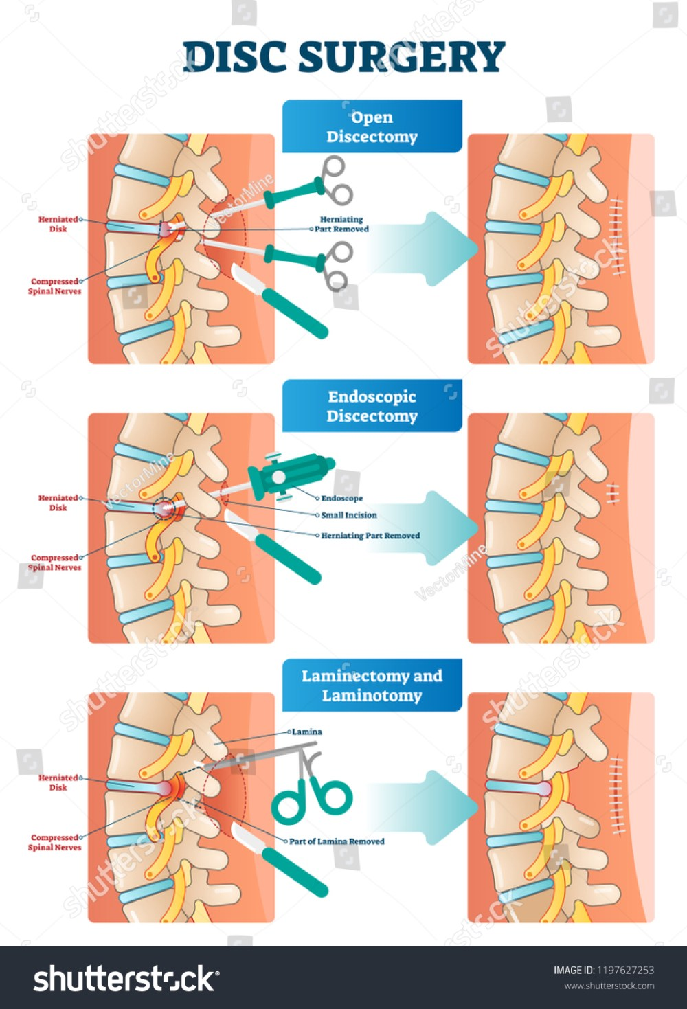 medium resolution of medical labeled diagram with back pain from compressed spinal nerves