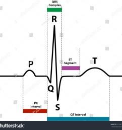 ecg ekg normal sinus rhythm with wave and segment names  [ 1500 x 1431 Pixel ]