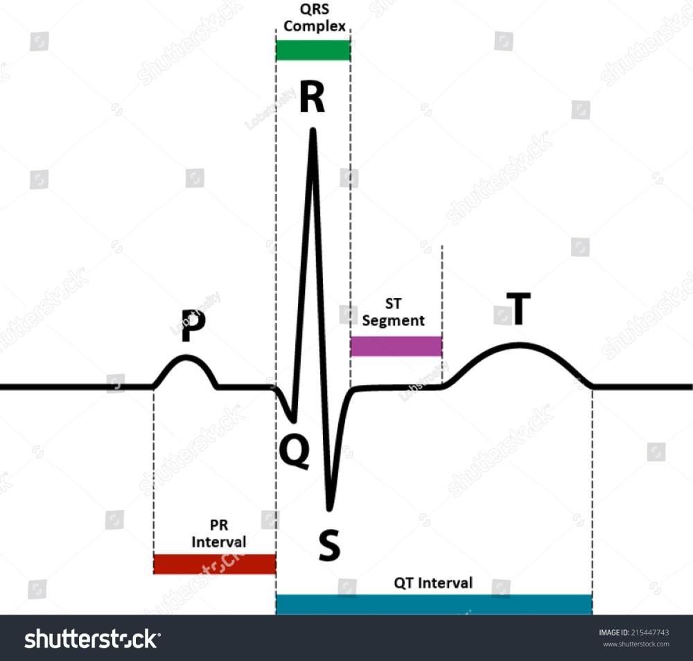 medium resolution of ecg ekg normal sinus rhythm with wave and segment names