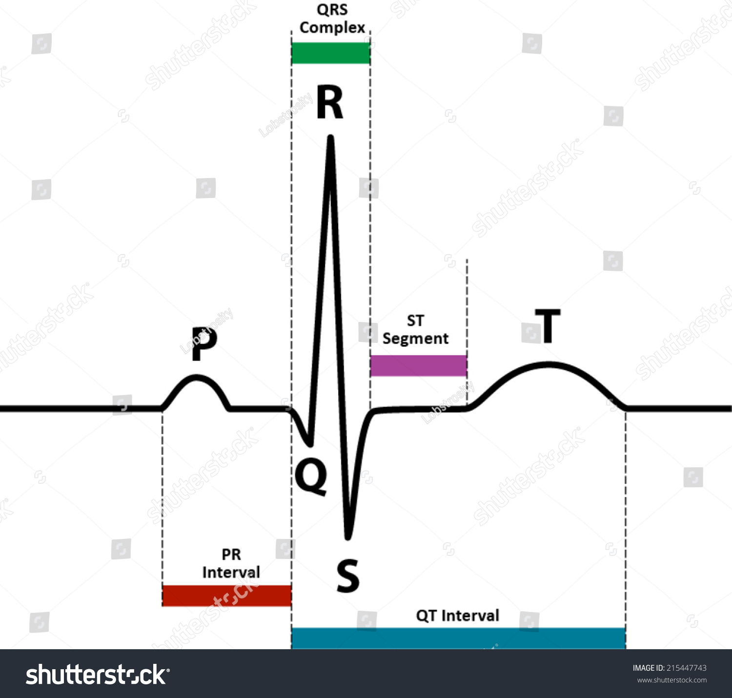 hight resolution of ecg ekg normal sinus rhythm with wave and segment names