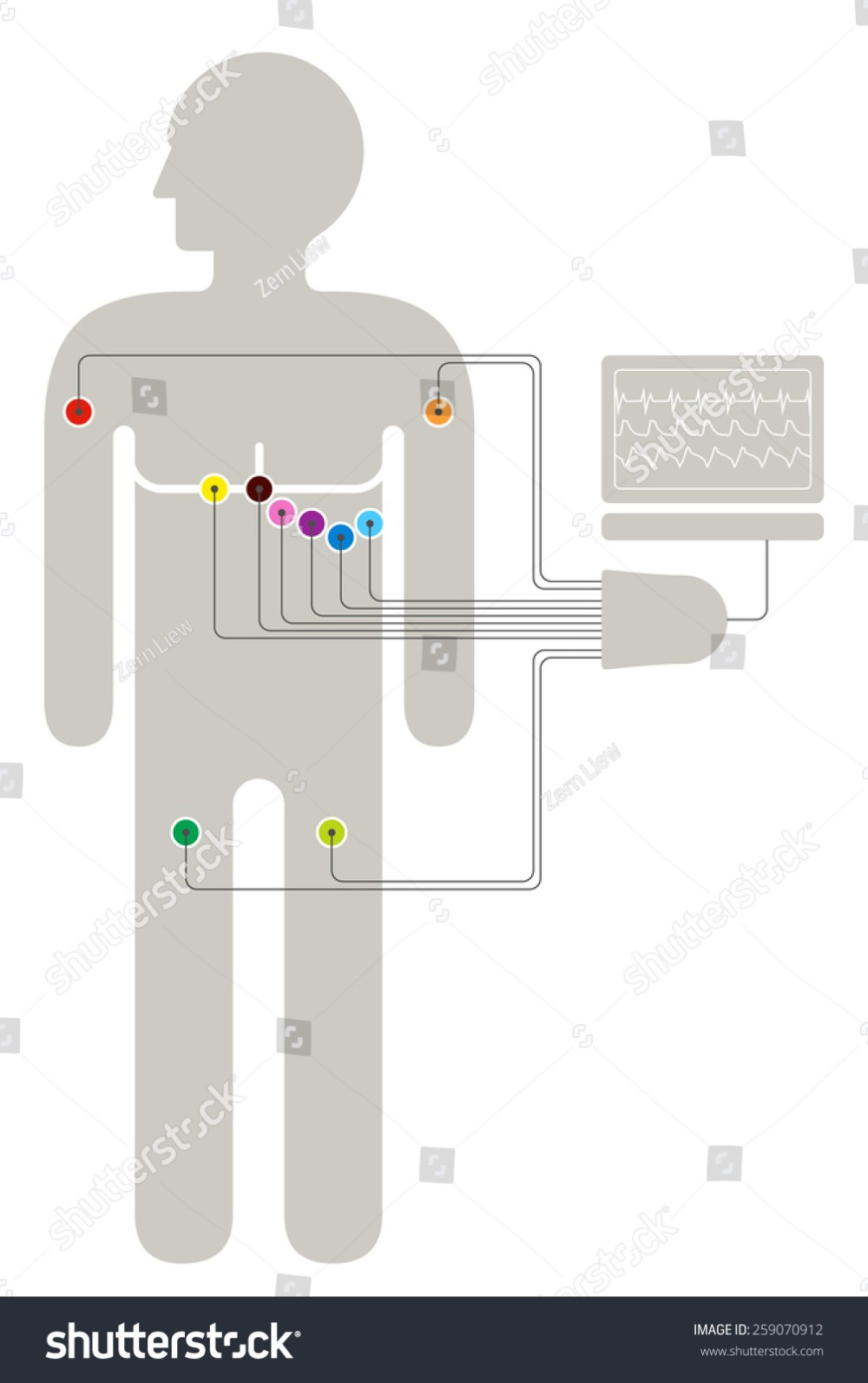 medium resolution of ecg wiring diagram showing 6 2 2 colour coded sensors connected to a