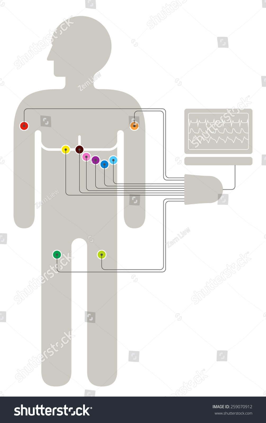 hight resolution of ecg wiring diagram showing 6 2 2 colour coded sensors connected to a