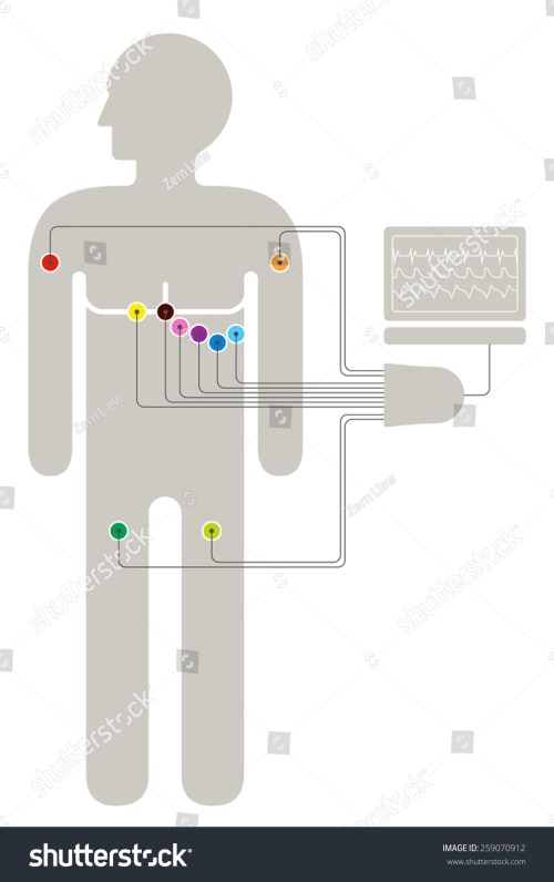 small resolution of ecg wiring diagram showing 6 2 2 colour coded sensors connected to a
