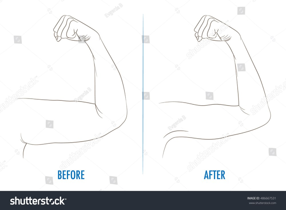 medium resolution of female biceps before and after sport arms showing progress after fitness bent arm with