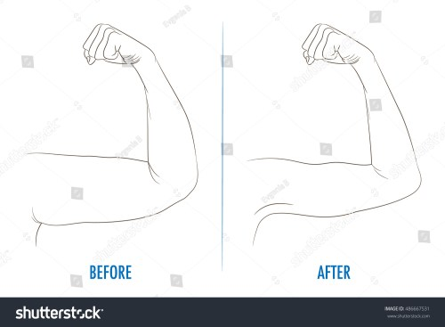 small resolution of female biceps before and after sport arms showing progress after fitness bent arm with