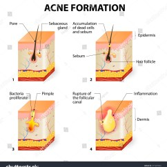 Pimples On Cheek Diagram Mercedes Sl Wiring Pimple Growth Illustration Of