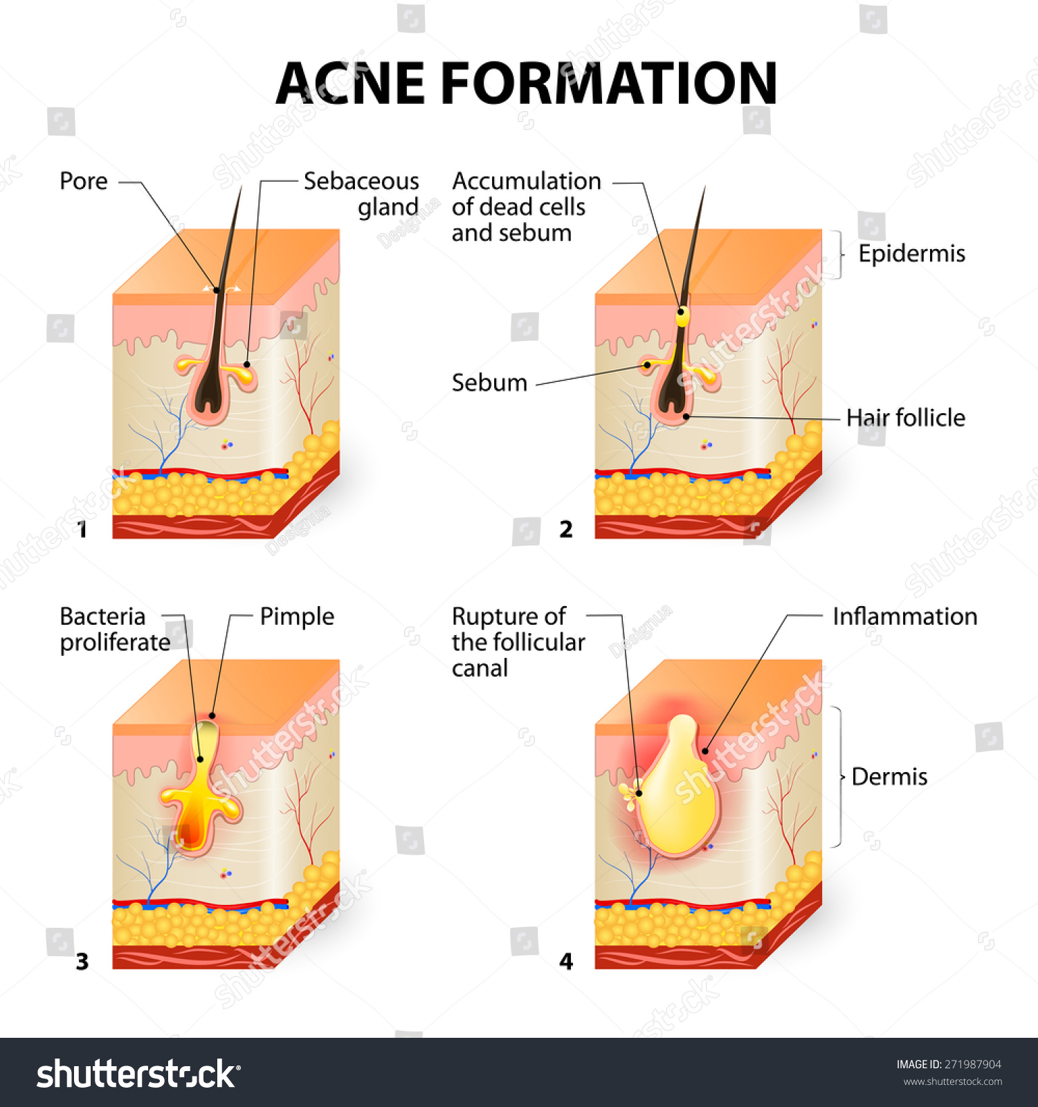 diagram for pimples on face 2005 nissan 350z radio wiring pimple growth illustration of