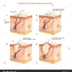 Diagram For Pimples On Face Dewalt Chop Saw Parts Formation Skins Pimple Acnes Stock Vector 328935095