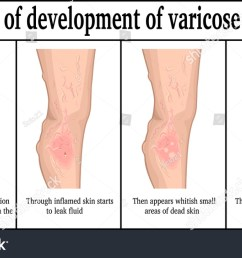 four stages of development of varicose ulcers on the lower leg [ 1500 x 918 Pixel ]