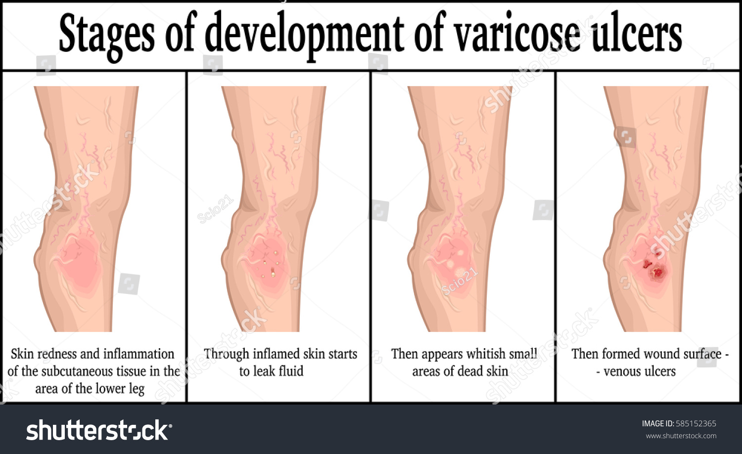 hight resolution of four stages of development of varicose ulcers on the lower leg
