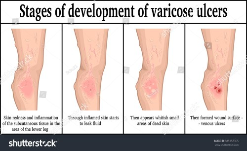small resolution of four stages of development of varicose ulcers on the lower leg