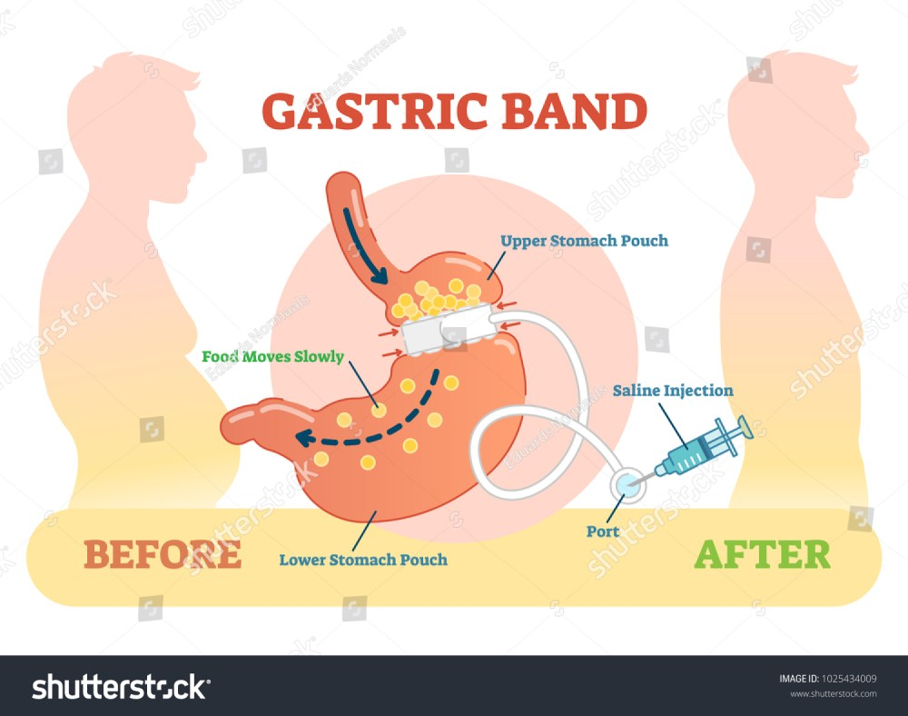 medium resolution of gastric band anatomical vector illustration diagram
