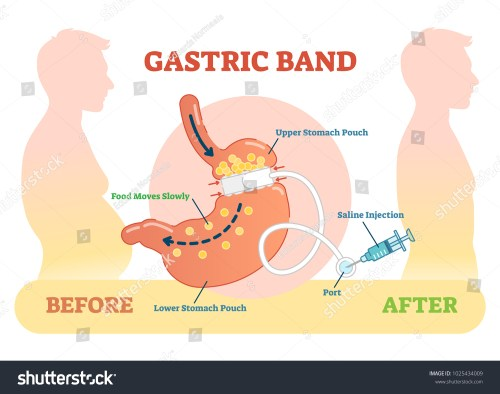 small resolution of gastric band anatomical vector illustration diagram