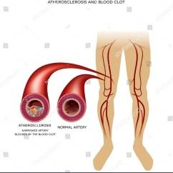 Leg Venous Diagram 1992 S10 Blazer Radio Wiring Healthy Artery Peripheral Arterial Disease Stock