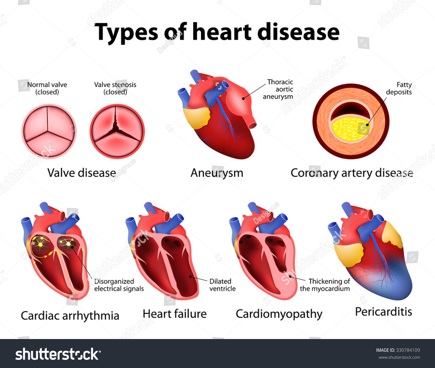 Heart Disease Valve Disease Aneurysm Coronary Stock Vector