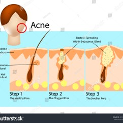Diagram For Pimples On Face F250 Stereo Wiring How Acne Develops Stages Formation Stock Vector