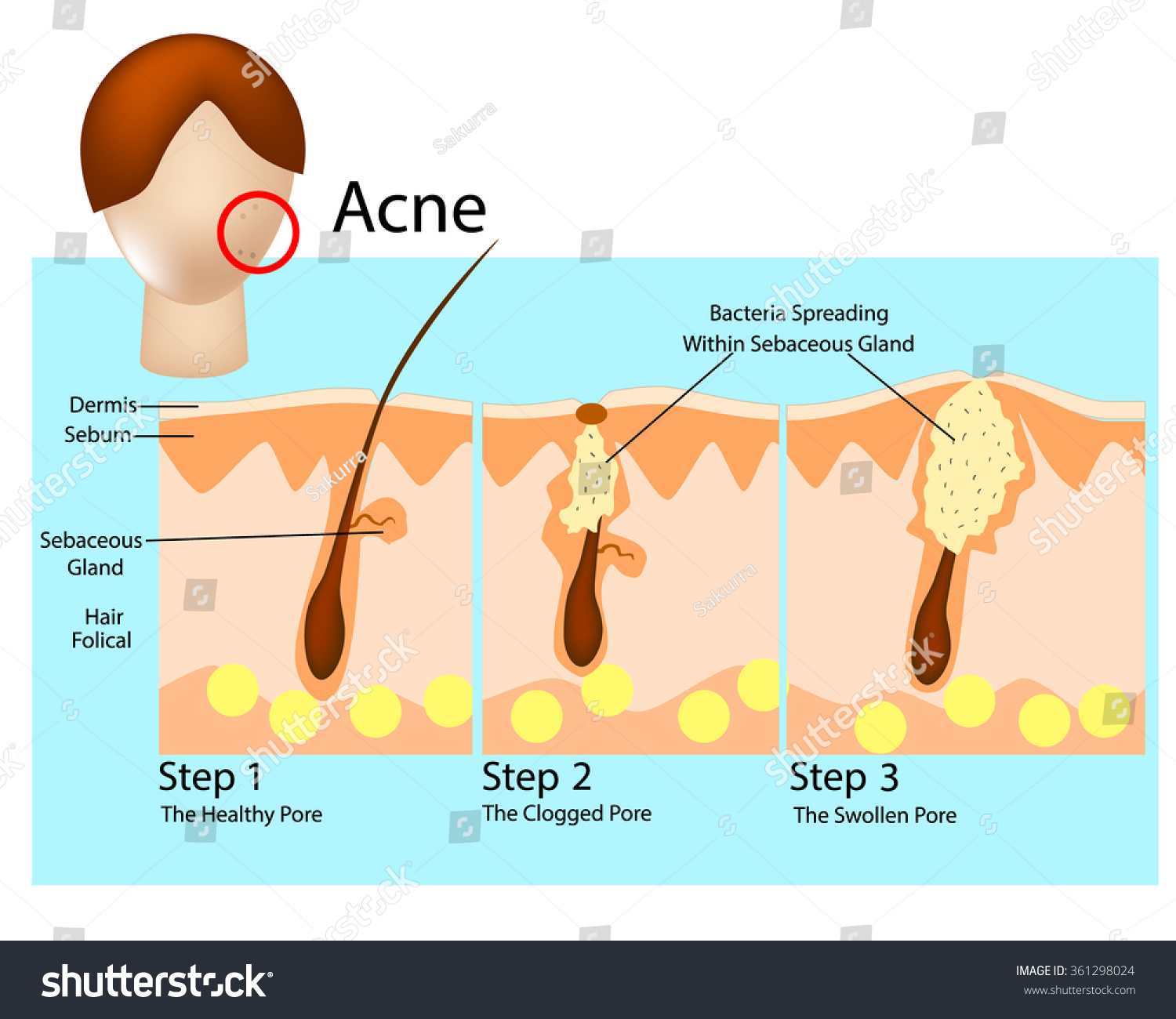 pimples on cheek diagram roller shutter door motor wiring how acne develops stages formation stock vector